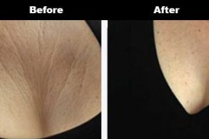 Cleavage Wrinkles Before After Bravity 1 3