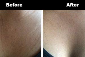 Cleavage Wrinkles Before After Bravity 13