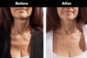 Cleavage Wrinkles Before After Bravity 4 2