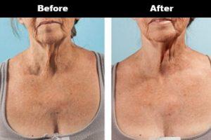 Cleavage Wrinkles Before After Bravity 5 2