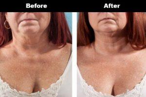 Cleavage Wrinkles Before After Bravity 6 2