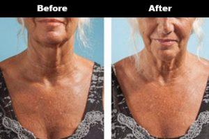 Cleavage Wrinkles Before After Bravity 7 2