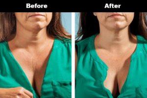 Cleavage Wrinkles Before After Bravity 9 2